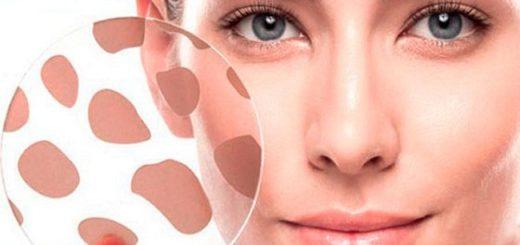 Гиперпигментация кожи лица